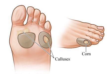 Difference Between Corns and Calluses