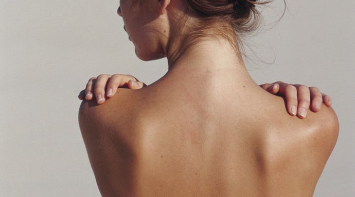 How to get rid of back chest and face acne