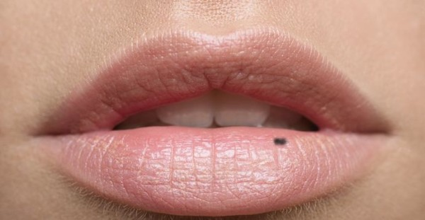 What Causes Dark Spots on Lips