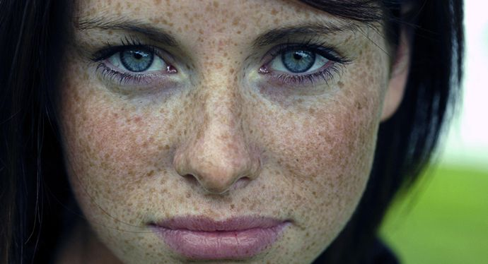How to Remove Freckles