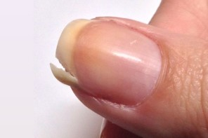 How do you fix a split nail?