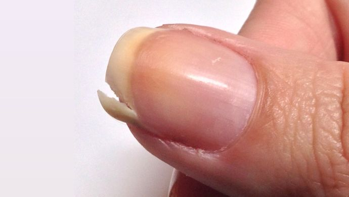 How To Fix A Split Nail