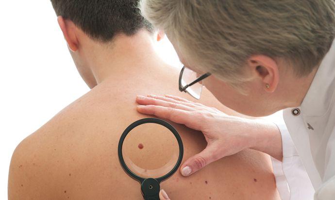 How do you remove moles