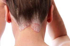 Natural Home Remedies for Psoriasis